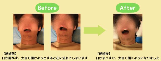 顎関節症 改善例